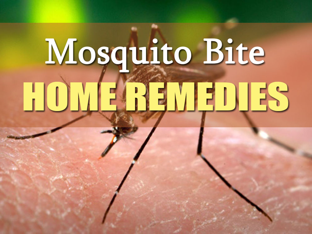 How To Get Rid Of Mosquito Bites 12 Home Remedies
